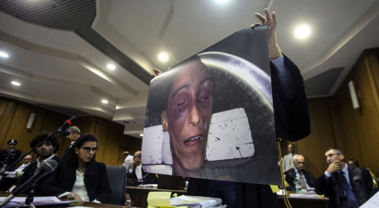 Stefano Cucchi massacrato. Foto mostrata dall'avvocato